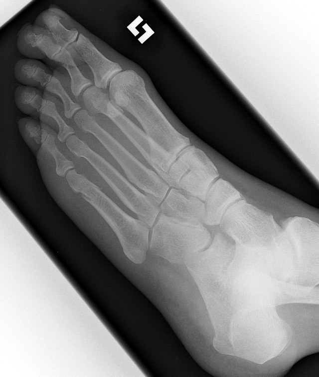 smith fracture radiology - 640×755